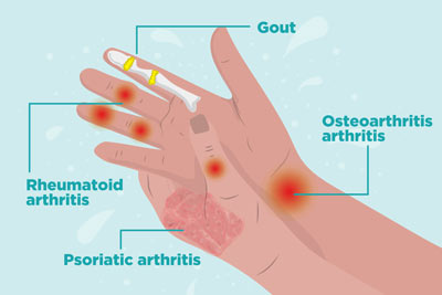 Arthritis of the Hand Treatment Doctors