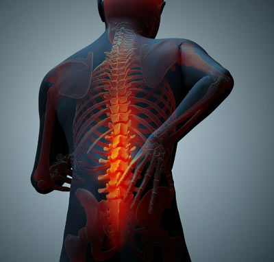 NYC Back Injury Treatment Doctors