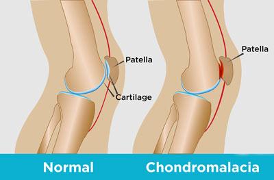 NYC Chondromalacia Patella Treatment Doctors