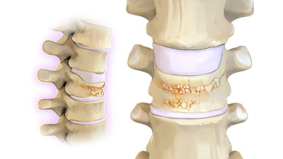 Compression Fracture Treatment in NYC