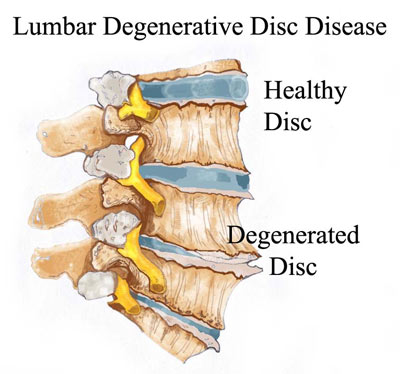 Degenerative Disk Disease Treatment NYC