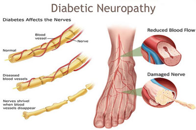 Diabetic Neuropathy Treatment NYC