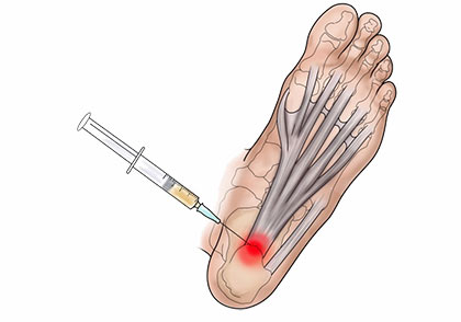 Foot Injections (cortisone, steroid) NYC
