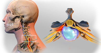 Herniated Disc in the Neck Treatment in NYC