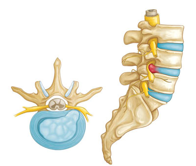 Herniated Disc Treatment in NYC
