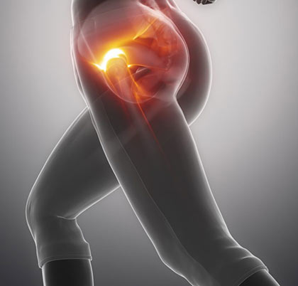 Hip Pain Treatment in NYC