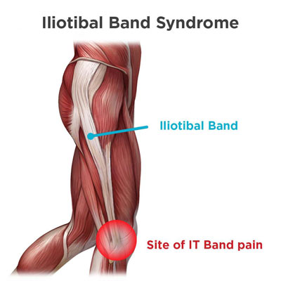 Iliotibial Band Syndrome Treatment in NYC