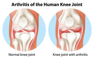 NYC Knee Arthritis Treatment