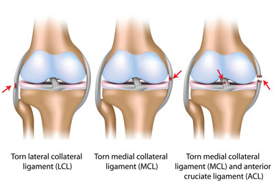 Knee Ligament Tear Treatment NYC
