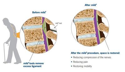 MILD Procedure in NYC