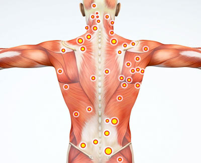Myofascial Pain Syndrome Treatment NYC