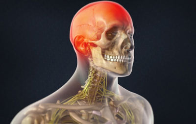 Occipital Neuralgia Treatment in NYC