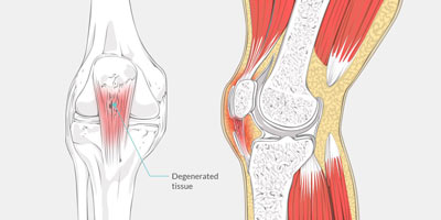 Patellar Tendonitis Treatment in NYC