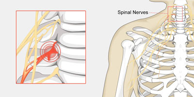 Pinched Nerve in the Neck Treatment NYC