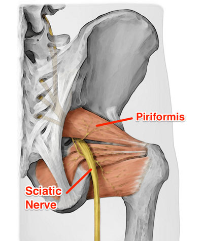 Piriformis Syndrome Treatment in NYC