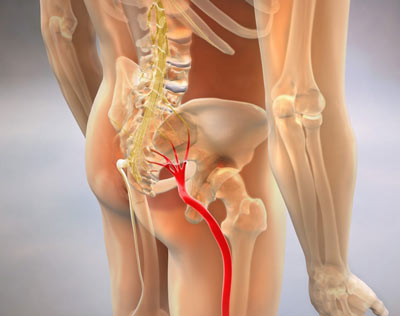 Sciatica Treatment in NYC