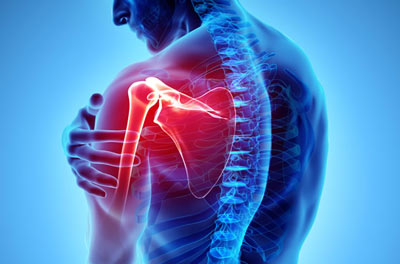 Shoulder Injuries Treatment in NYC
