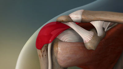 Shoulder Tendonitis Treatment in NYC
