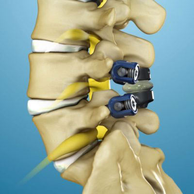 Spinal Stenosis Surgery in NYC