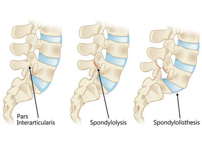 Spondylolisthesis Treatment in NYC