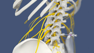 Lumbar Sympathetic Nerve Block in NYC