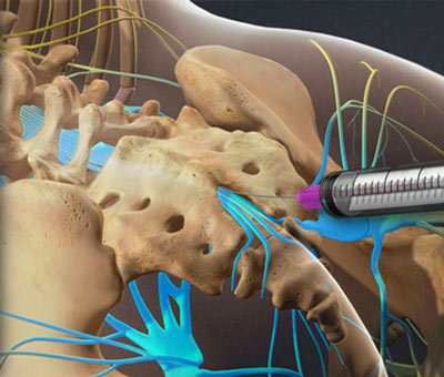 Thoracic Epidural Injection in NYC